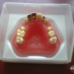 hillscollectibles-dentures1