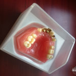 hillscollectibles-dentures2