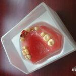 hillscollectibles-dentures3