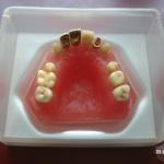 hillscollectibles-dentures4