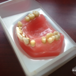 hillscollectibles-dentures5