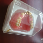 hillscollectibles-dentures6